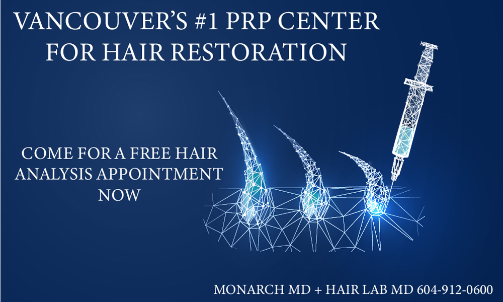 best PRP hair restoration clinic in vancouver