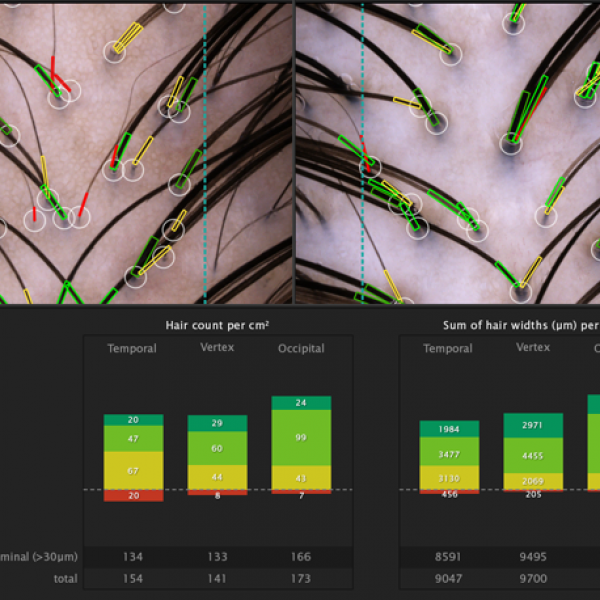 hair analysis for hair prp, vancovuer's best hair prp