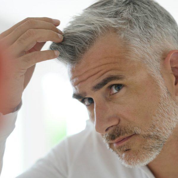 men hair transplant HAIR LOSS